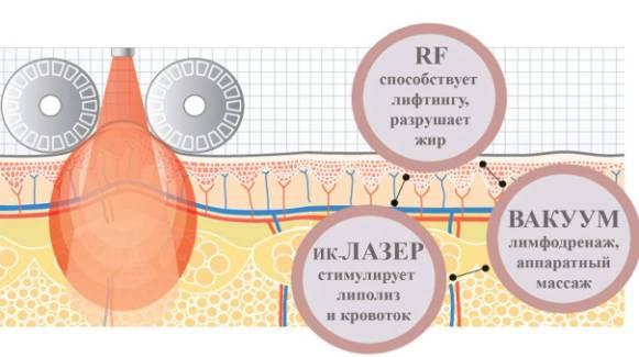 RF (РЧ) - лифтинг