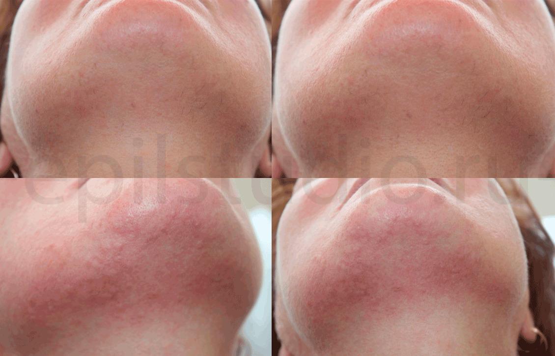 Электроэпиляция волос на лице