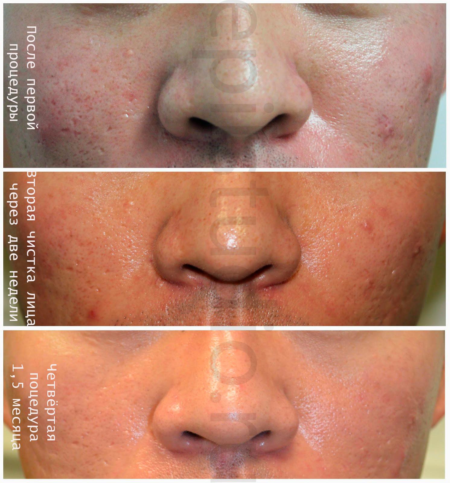 Чистка лица угри на лице