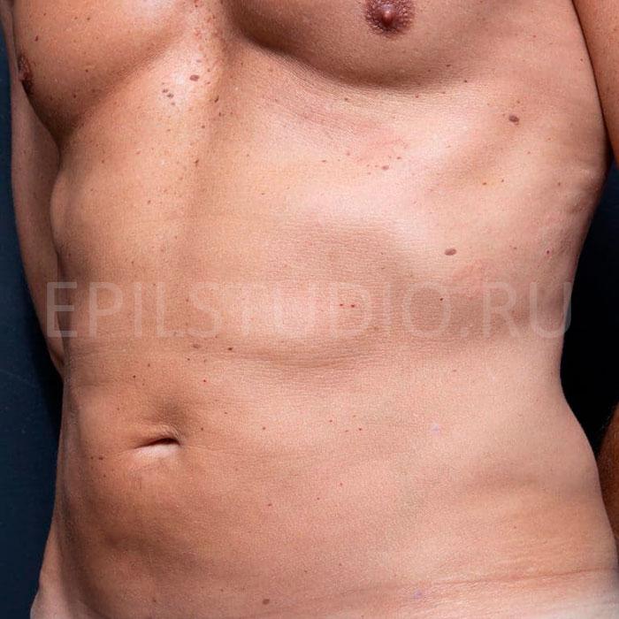Процедуры для красивого тела