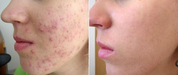 Лазерное лечение акне (угревой болезни)