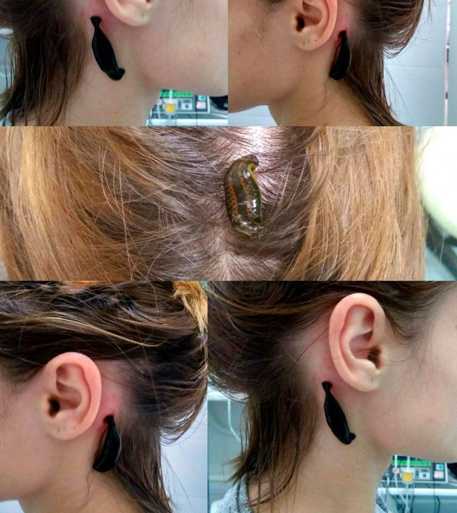 гирудотерапия головы