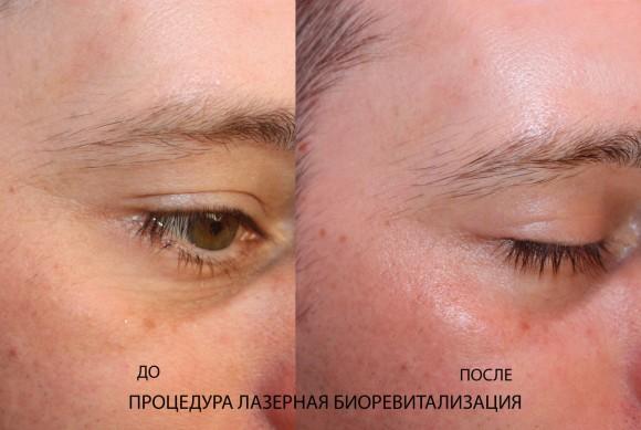 Биоревитализация лица лазером