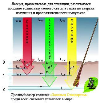 Описание и принцип работы лазерной эпиляции
