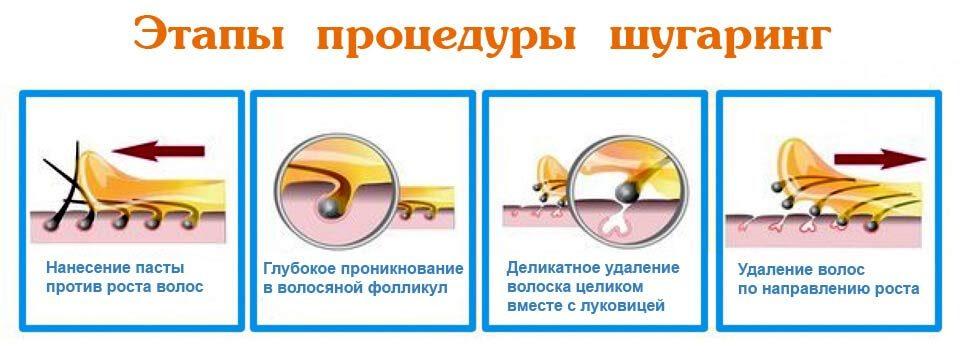 Особенности процедуры шугаринг