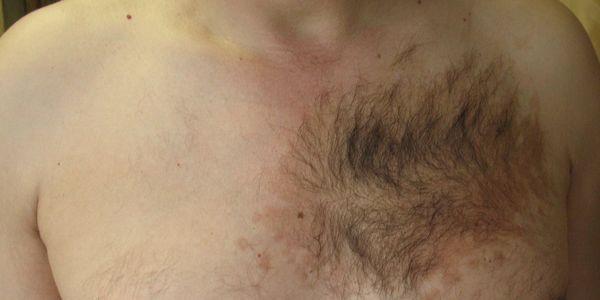 Невус Беккера (Беккера - Рейтера синдром)