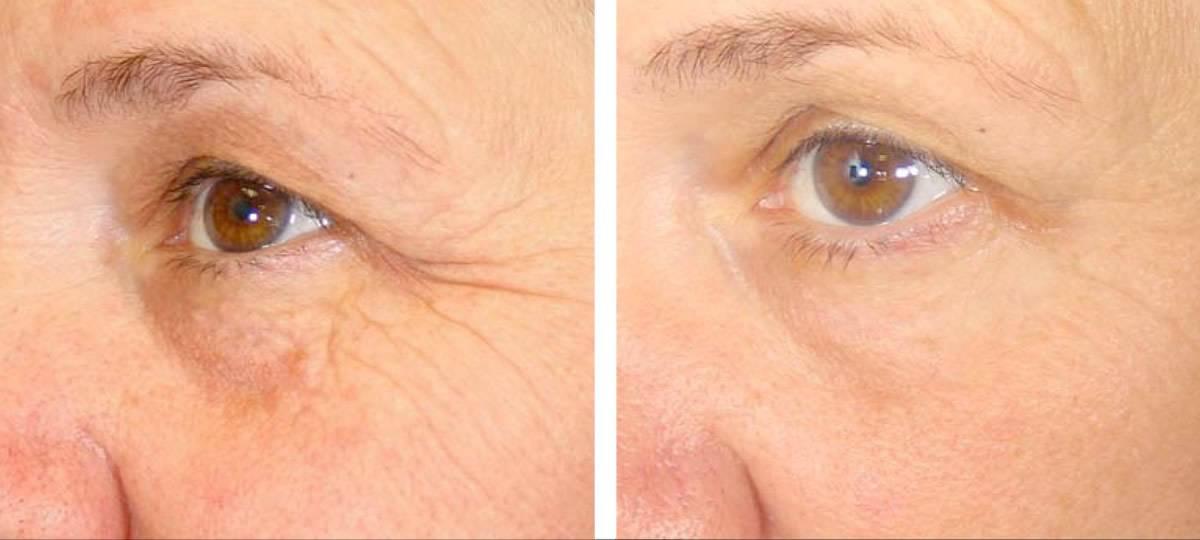 Мезотерапия зоны глаз