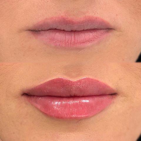 соблазнительные надутые губы