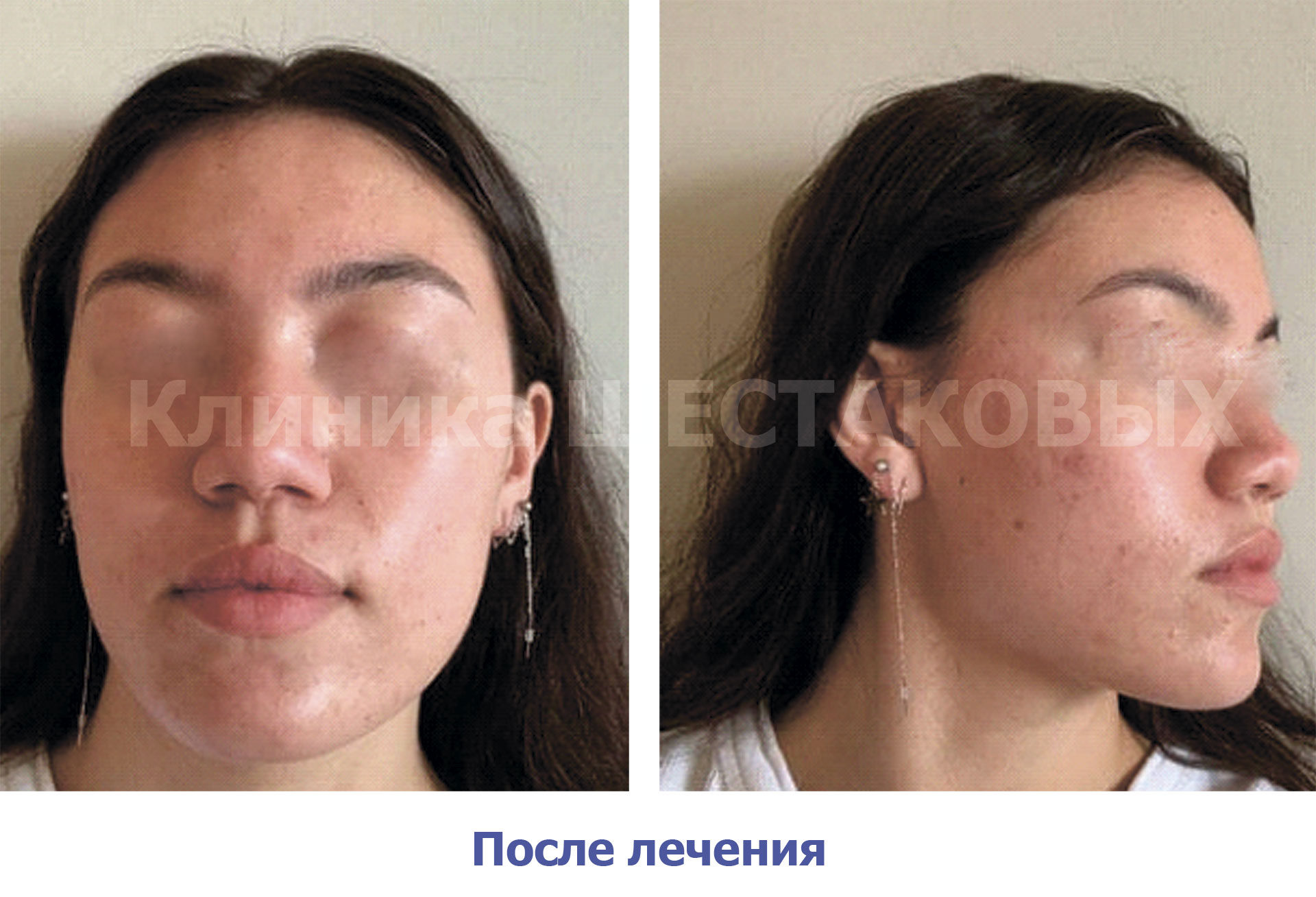 Лечение шрамов от угревой сыпи