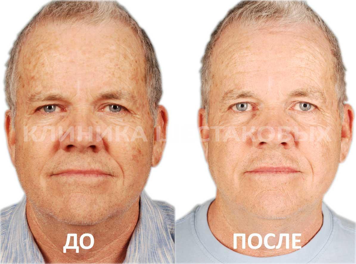 Отшлифовать кожу на лице